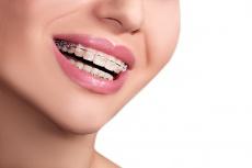 jameda Experten-Ratgeber  Zahnspange