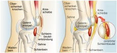 Knieschmerzen & Kreuzbandriss