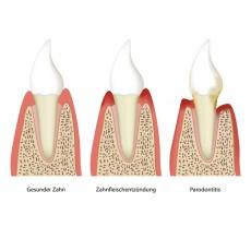 Parodontose