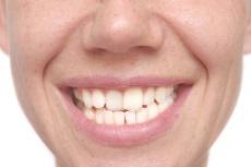 jameda Experten-Ratgeber  Zahnersatz & Implantate