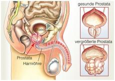 jameda Experten-Ratgeber  Prostata