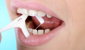 Professionellen Zahnreinigung Vor- und Nachteile