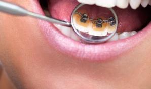 Zahnspangen für Kinder und Erwachsene