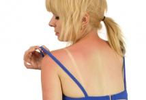 Hautkrebs Sonnenbrand