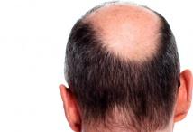 Wie Haarausfall stoppen