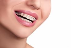 Zahnspangen machen auch für Erwachsene Sinn